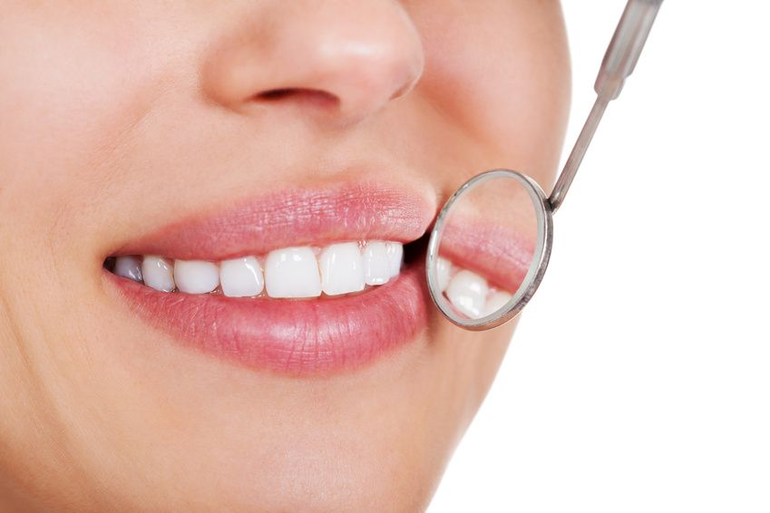 professional tooth bleaching